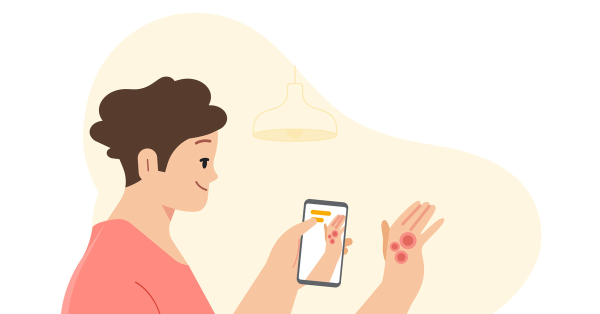 Google announces a health tool to identify skin conditions
