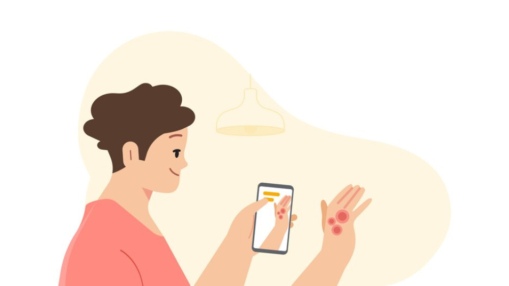 Google introduces an artificial intelligence tool that diagnoses skin diseases